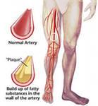 Поставлен диагноз: Облитерирующий атеросклероз