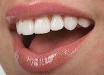 Сохранить зубы