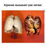 Причина лёгочных заболеваний
